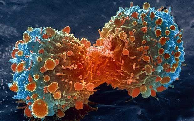 Un nou TRATAMENT anticancer promite rezultate IMPRESIONANTE
