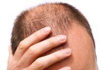 Ce boli CUMPLITE pot ascunde CHELIA sau PUNGILE de sub ochi