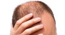 Alimente care previn căderea părului. Ce mănânci ca să obţii cei şapte nutrienţi anti-chelie