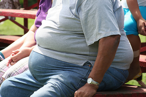 Statistică îngrijorătoare: Obezitatea ucide mai multe persoane decât se credea