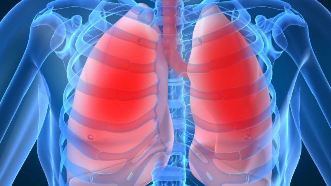 Un medicament banal poate ajuta în tratamentul cancerului la plămâni