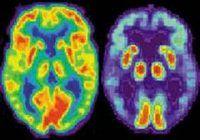 Cercetătorii au identificat o cauză neaşteptată a Alzheimerului
