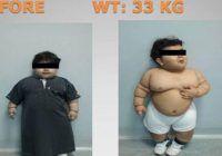 Un copil de doi ani cu obezitate morbidă a devenit cel mai tânăr pacient din lume, cu operaţie de micşorare a stomacului