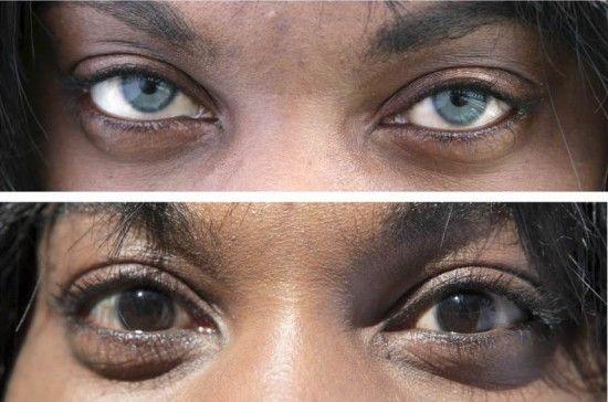 Ce presupune operaţia care îţi poate schimba definitiv culoarea ochilor cu nuanţa preferată