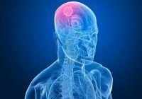 Semnele tumorilor cerebrale apar brusc. Mergelti la medic și dacă aveți dureri de cap care nu trec în câteva zile