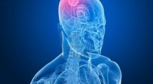 10 TULBURĂRI care pot indica prezența unei TUMORI cerebrale