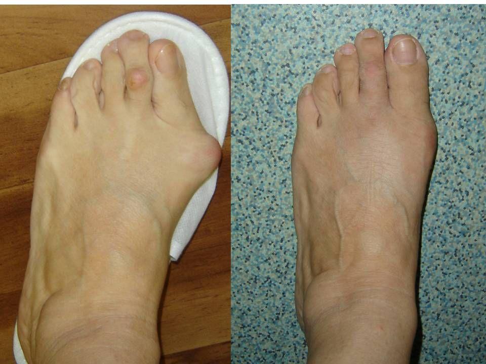 Гигрома стопы и лечение в домашних условиях 186