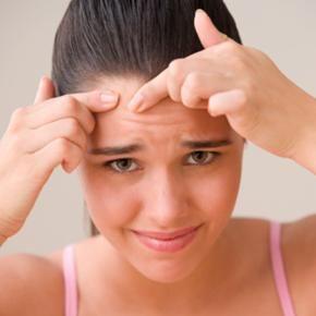 Cinci mituri despre acnee şi adevărul din spatele lor