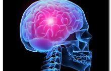 Accidentul vascular cerebral, pe înțelesul tuturor. Explicațiile neurologului: cine face AVC și de ce. Cum îl prevenim și ce semne trebuie să ne îngrijoreze
