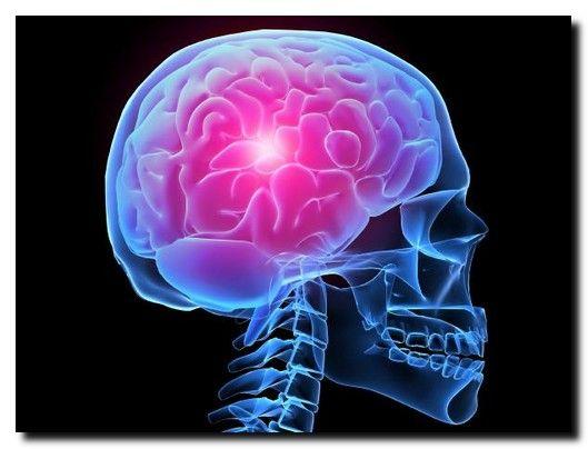 Cauza nebănuită a accidentelor vasculare cerebrale