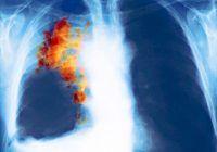 Victorie URIAȘĂ pentru imunoterapie în studiul cancerului pulmonar