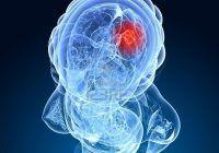Un obiect pe care aproape toată lumea îl foloseşte, creşte cu până la 300%  riscul de cancer la creier