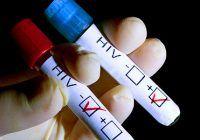 Testul care îți arată dacă ai HIV. Este disponibil online și are o acurateţe de peste 99%