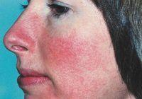 Cum puteți combate unele dintre cele mai frecvente boli de piele