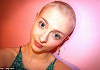 O tânără și-a smuls tot părul din cap din cauza unei boli compulsive rare