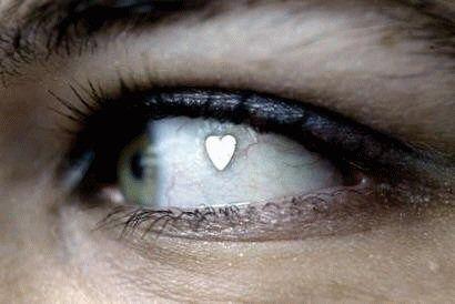 Bijuterie implantata in globul ocular