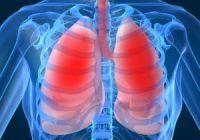 Pacienţii români cu bronhopneumopatie obstructivă cronică sunt mult mai tineri decât media europeană
