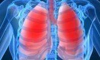 Tușești, respiri greu și ai senzația de apăsare în piept? Ai putea avea BPOC!