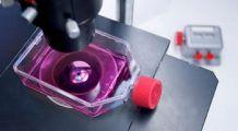 Terapia cu celule stem poate încetini evoluția Alzhemerului și a Parkinsonului