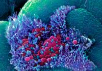 Imunitatea şi flora intestinală. Află cum se influențează reciproc