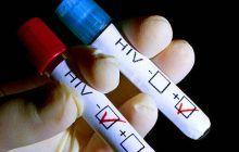 Primul test pentru HIV care poate fi făcut acasă. Funcționează pe baza unei probe de salivă și rezultatul apare în 15 minute