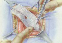 Mituri şi adevăruri despre plasele chirurgicale folosite în tratamentul herniilor