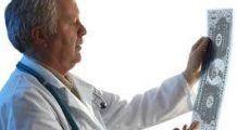 STUDIU: O singură radiografie crește de trei ori riscul apariției tumorilor cerebrale
