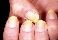 Ai unghiile îngălbenite sau crăpate? Iată ce boli ascund