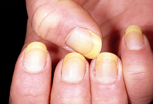 dermatita de contact tratament pentru candida