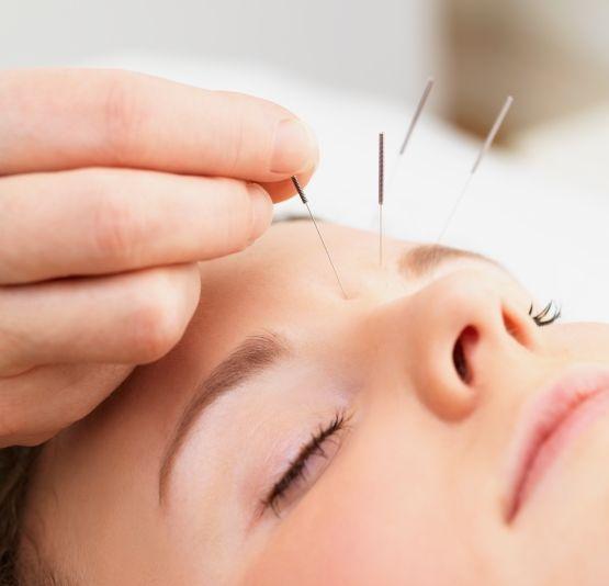 Printre afecţiunile care pot fi tratate cu ajutorul acupuncturii se numără hipotiroidia, hipertiroidia sau obezitatea.