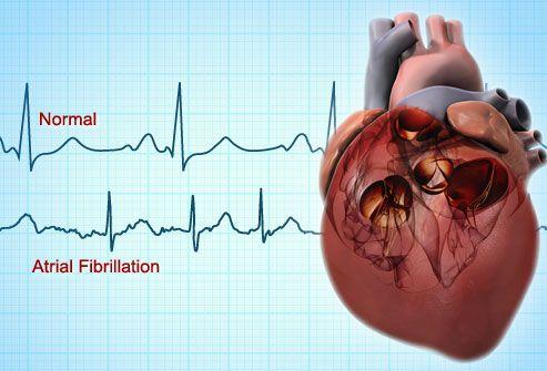 Cele mai frecvente întrebări și răspunsuri despre fibrilația atrială, o afecțiune care crește considerabil riscul de accident vascular