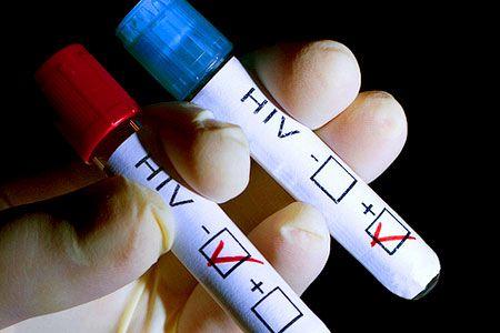 Virusul HIV, aproape de a fi ERADICAT