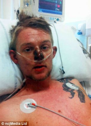 """""""O pastilă pentru dureri de cap aproape m-a ucis"""". Un tânăr a intrat în comă după ce a luat un analgezic banal"""
