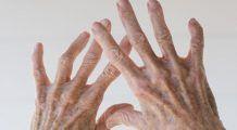Un gest simplu poate ajuta la prevenirea artritei