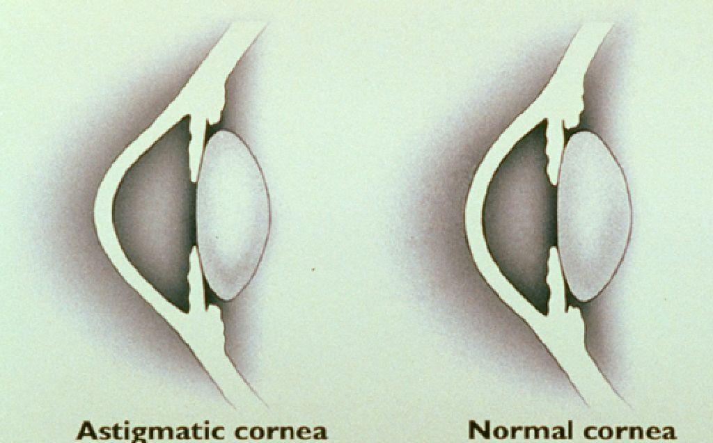 ASTIGMATISMUL> Diferenta intre ochiul normal si cel cu astigmatism.