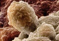 Rădăcina unei plante, mai eficientă decât CHIMIOTERAPIA. Distruge celulele canceroase, fara efecte secundare