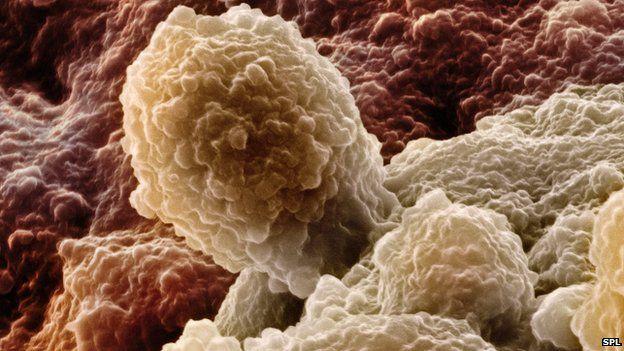 Descoperire alarmanta! Poti dezvolta 7 tipuri diferite de cancer din cauza acestor bauturi