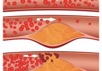 Colesterolul crește cu 15% din cauza exceselor de Sărbători, ceea ce mărește riscul de atac cerebral. Cum îl țineți în limite normale