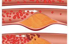 Doar câteva linguri din acest amestec scad tensiunea și colesterolul, aproape imediat
