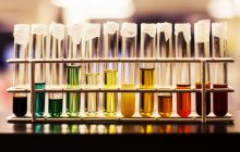 Culoarea urinei poate indica dacă ai tumori la rinichi sau cancer la vezica urinară