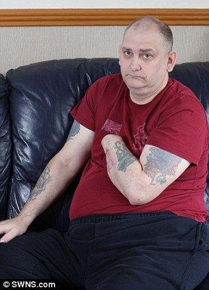 Un bărbat și-a tăiat singur mâna după ce medicii au refuzat amputarea. Iată de ce a apelat la acest gest extrem