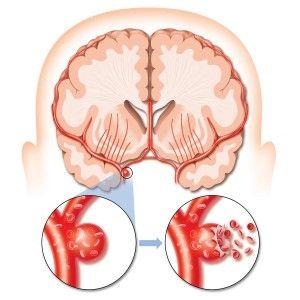 Semnele de alarmă care anunță accidentul vascular cerebral