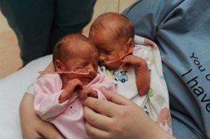 În sarcinile cu gemeni sau tripleti, fetele au șanse mai mari de supraviețuire