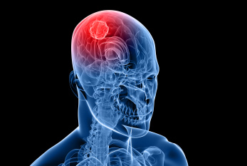 Descoperire importantă în tratamentul cancerului cerebral la copii