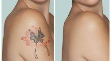"""Tatuajele nu sunt pe viață! Laserul care șterge """"picturile"""" nedorite"""