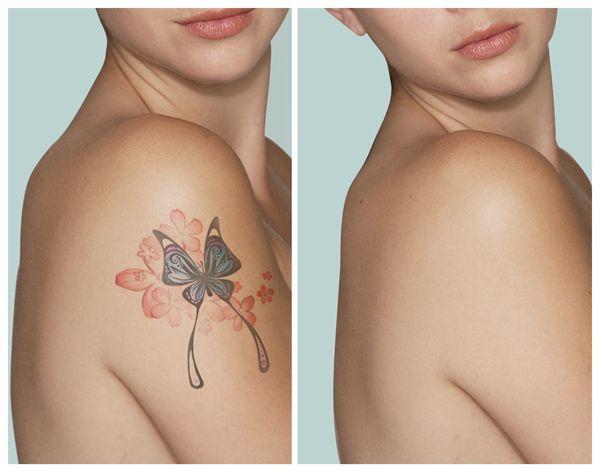 Crema care poate șterge tatuajele. Cum acționează și cât costă?