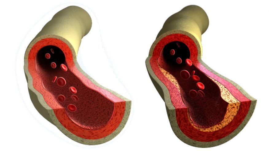 În ce alimente se găsește vitamina care protejează vasele de sânge și întărește oasele?