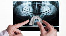 Scrâșnitul  dinților  trece  de la sine  la copii, adulții  au nevoie  de tratament