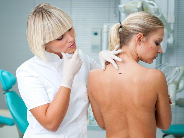Cum recunoști și cum previi melanomul, cea mai mai agresivă formă de cancer de piele