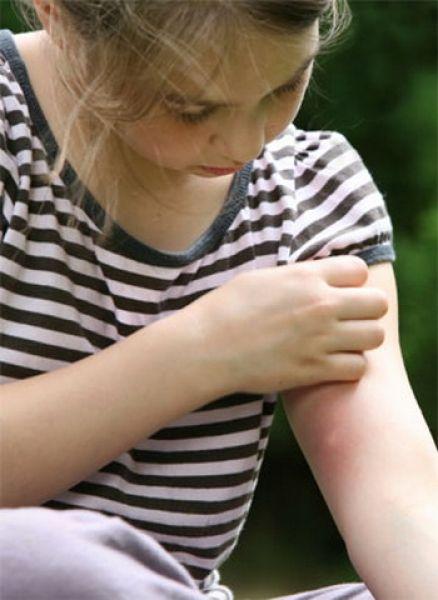 Sezonul insectelor. Ce boli transmit țânțarii și căpușele  și cum le prevenim